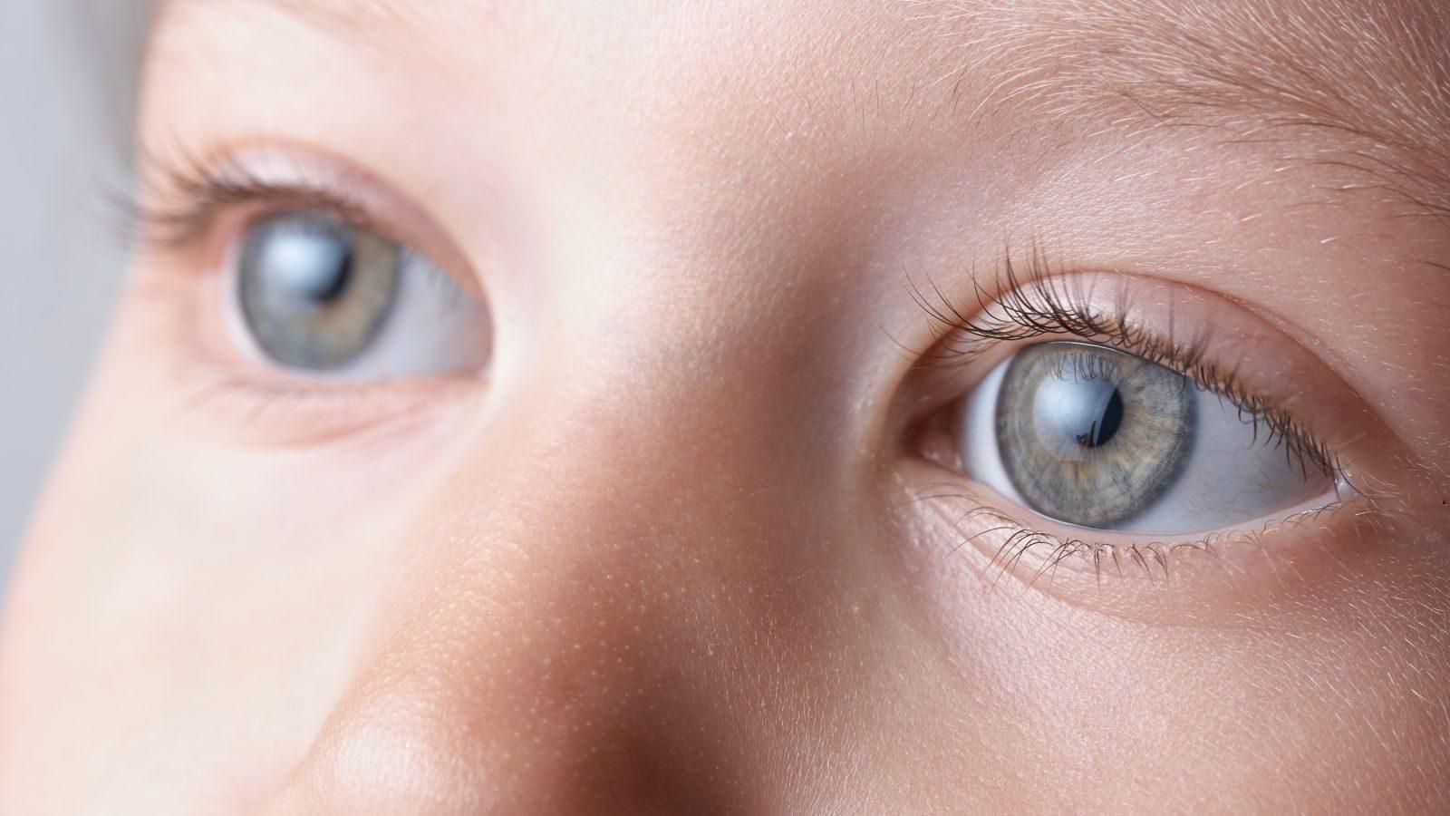 sort prik i øjet